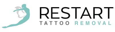 Restart Tattoo Removal